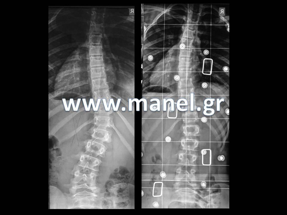 Κηδεμόνας σκολίωσης - κηδεμόνας κύφωσης Cheneau Ακτινογραφία σκολίωσης πριν και μετά τη χρήση κηδεμόνα