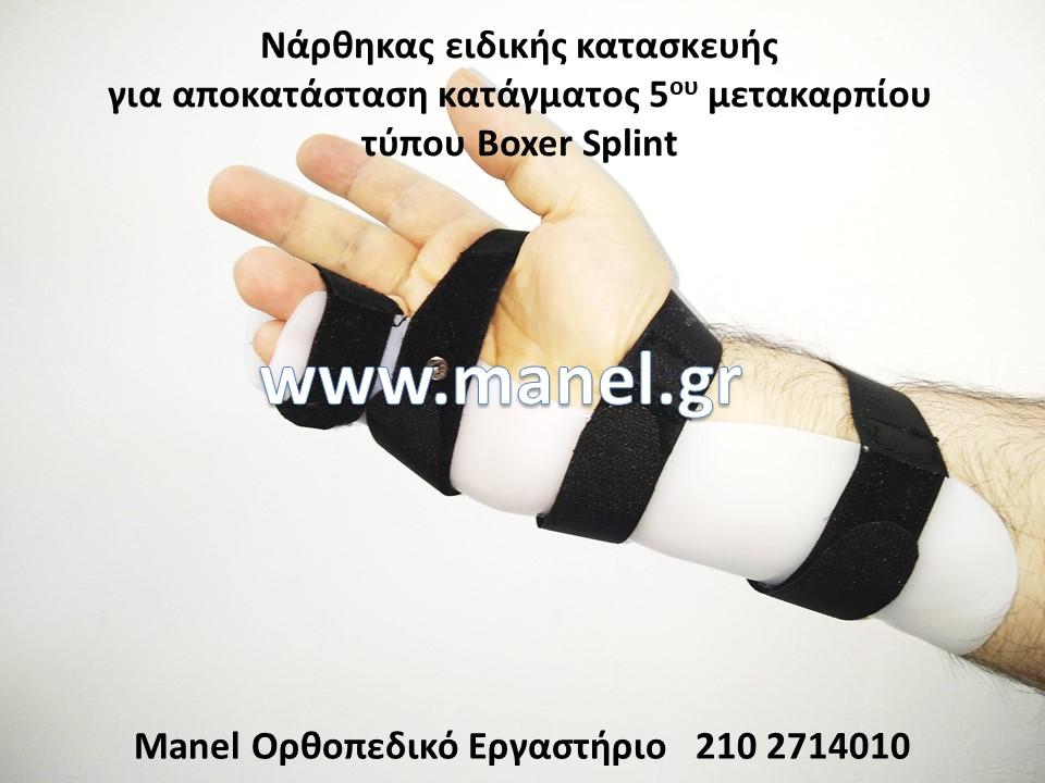Κηδεμόνες άνω άκρων Νάρθηκας ειδικής κατασκευής για αποκατάσταση κατάγματος 5ου μετακαρπίου τύπου Boxer Splint