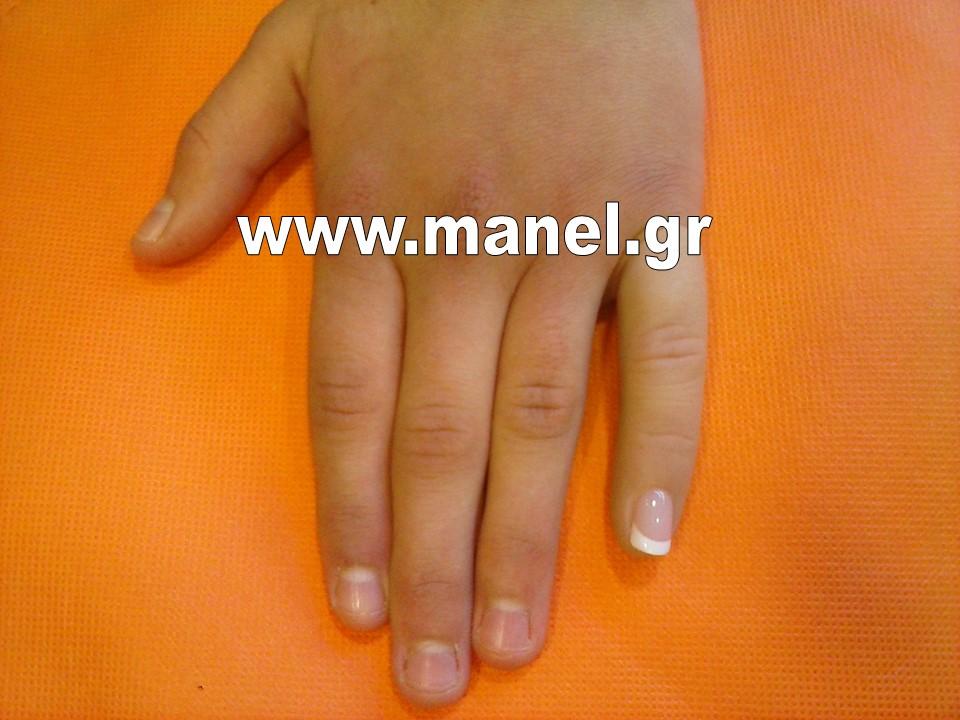 Τεχνητά μέλη - προθέσεις διακοσμητικές δακτύλων