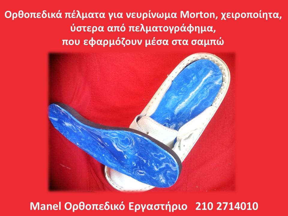 Ορθοπεδικά πέλματα για νευρίνωμα Morton