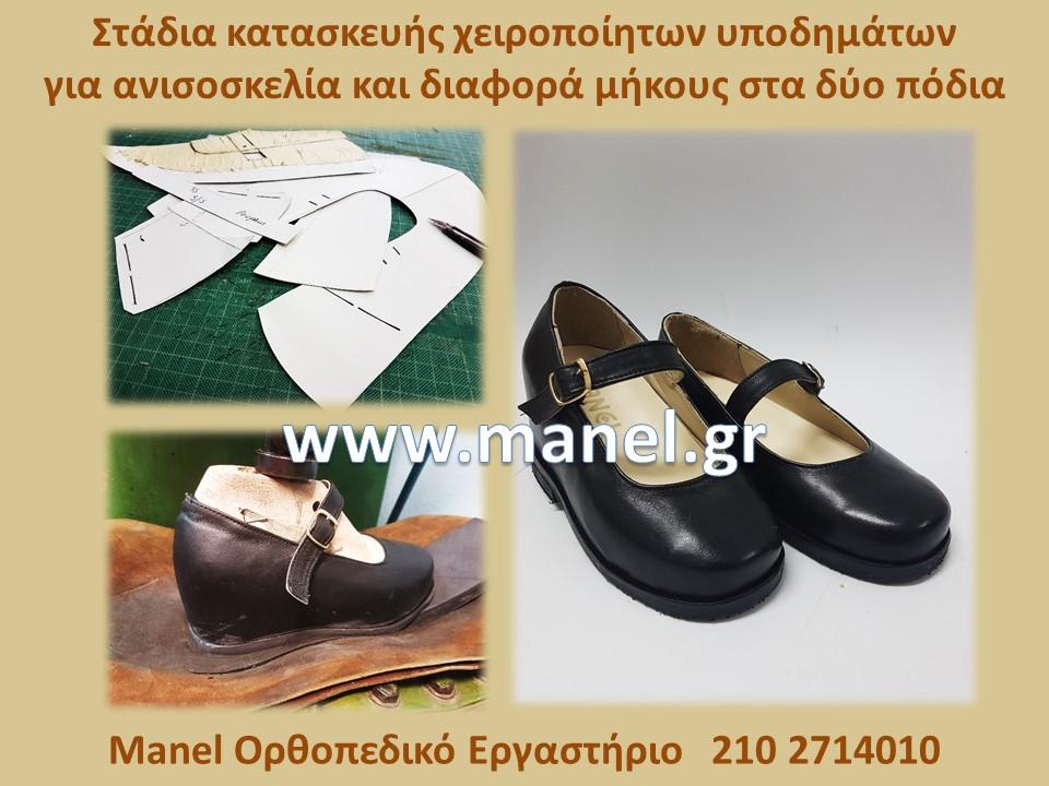 Παπούτσια επί παραγγελία για ανισοσκελία και διαφορά μήκους