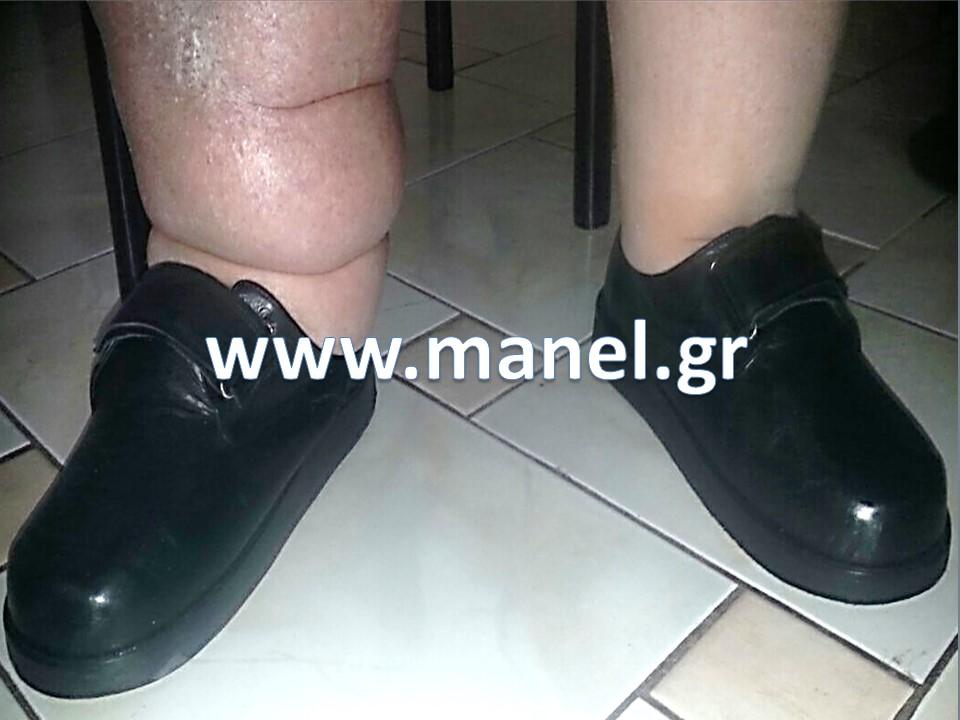 Χειροποίητα ορθοπεδικά παπούτσια - υποδήματα για λεμφοίδημα και σφυροδακτυλίια