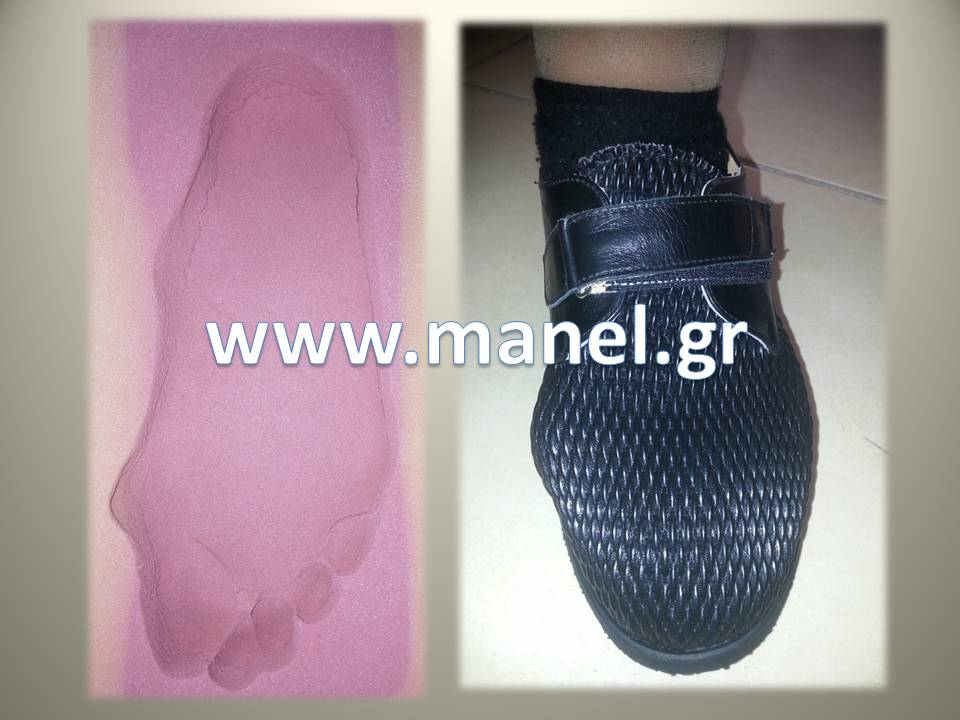 Ορθοπεδικά παπούτσια για βλαισό μέγα δάκτυλο - κότσι