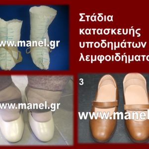 Παπούτσια για λεμφοίδημα