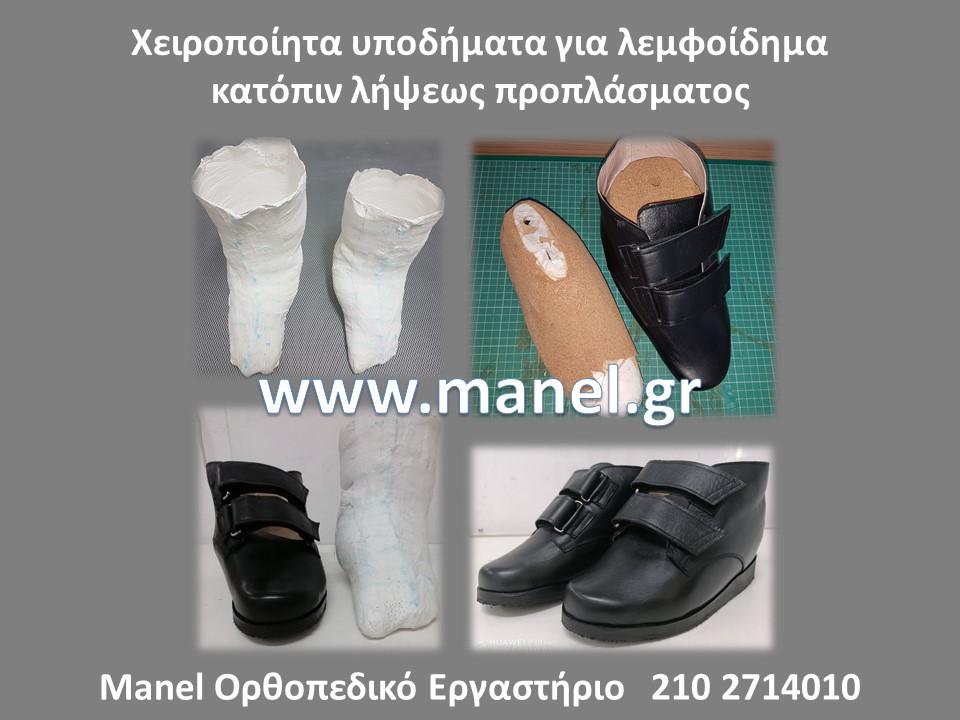 Ορθοπεδικά υποδήματα - παπούτσια για ιπποποδία - ραιβοϊπποποδία